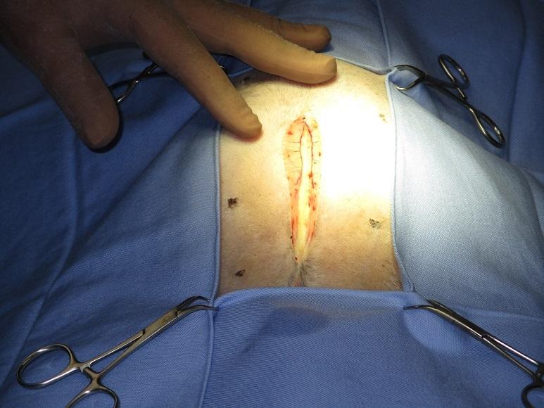 胆嚢粘液嚢腫1